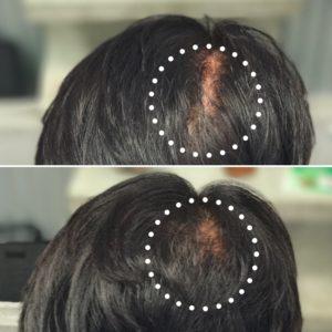 3D増毛で分け目をカバー